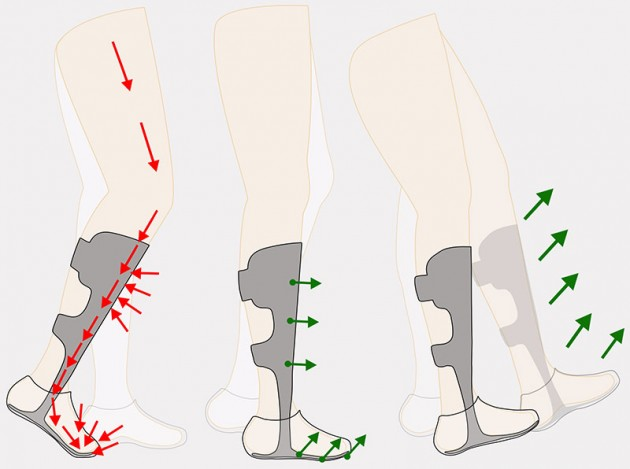 Dynamic orthese for foot and shin bone CARBONAFO code AM-ASS-OS