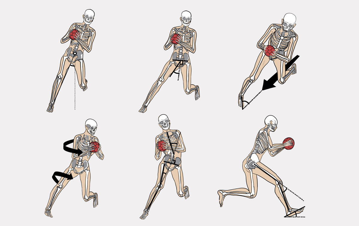 how to walk faster after acl surgery