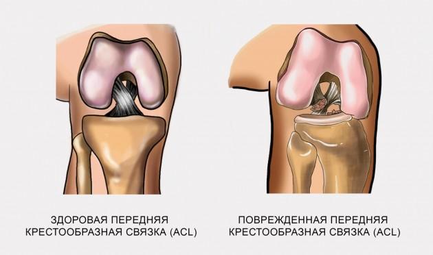 Повреждение передней крестообразной связки (ACL)