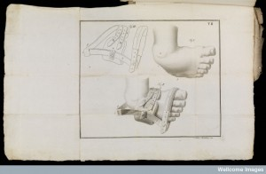 Orthotic supply of the club foot