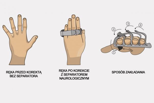 Separator neurologiczny