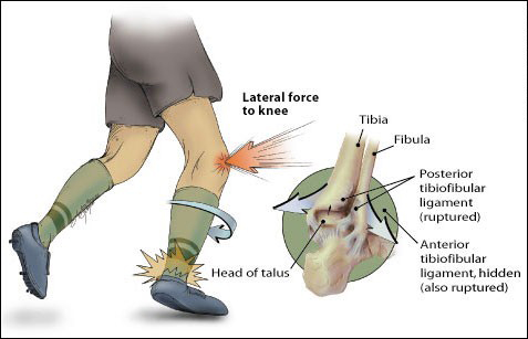 Deltoid ligament injury of the ankle