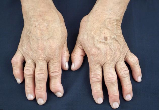 main rhumatoïde