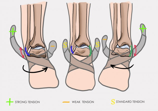 Maintain the foot in inversion or eversion
