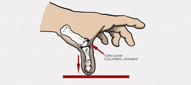 Universal wrist brace with removable thumb splint AM-OSN-U-11 Braceroom