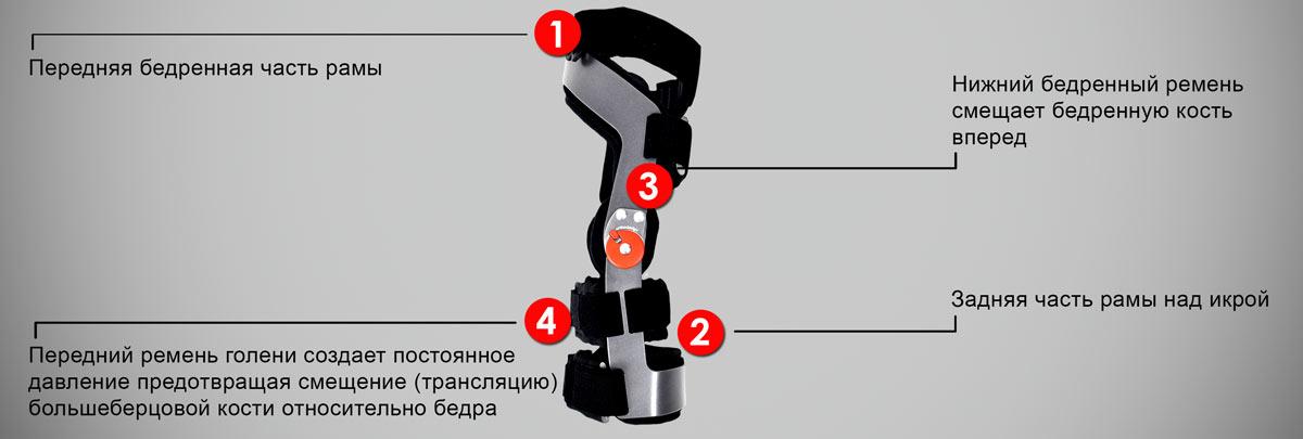 Вальгусная деформация стопы у