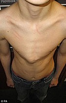Patient with pigeon chest before treatment
