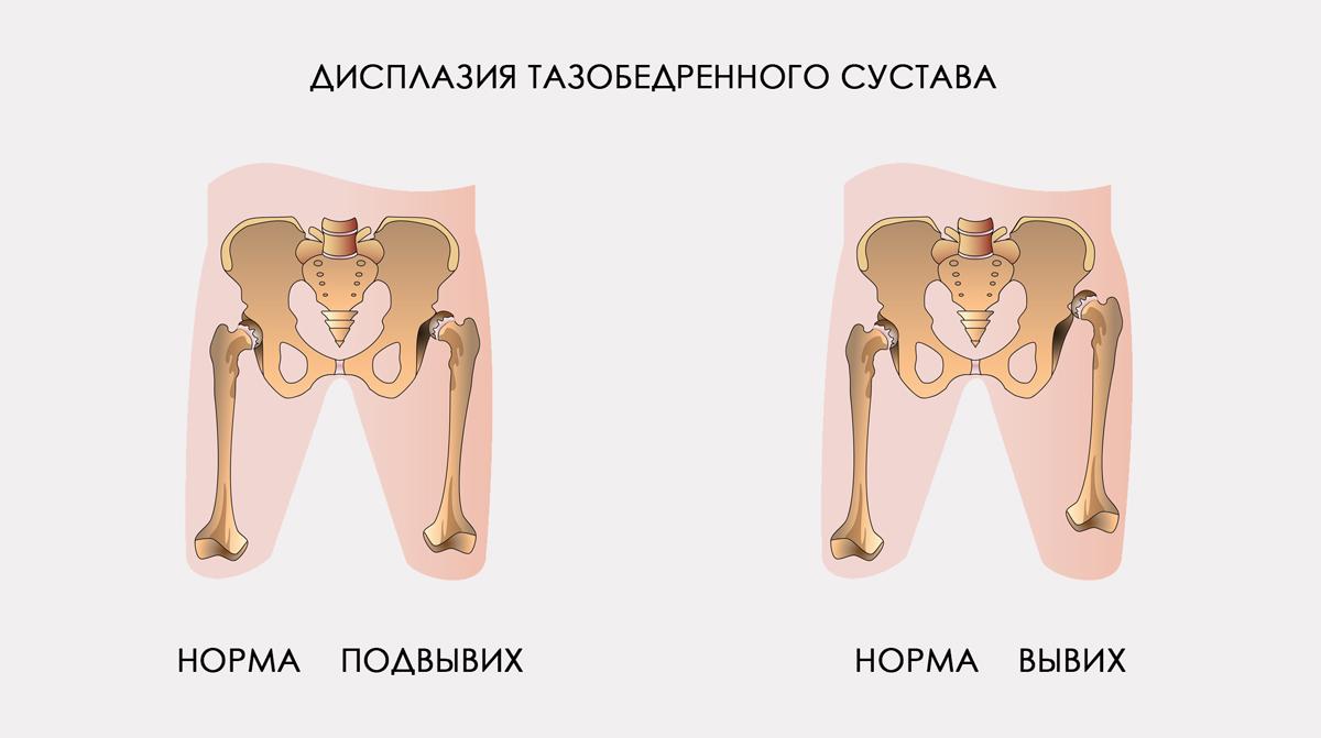 как лечить дисплазию тазобедренных суставов 1 степени