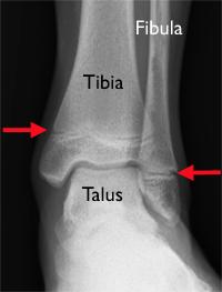 Czerwone strzałki na zdjęciu rentgenowskim wskazują chrząstkę nasadową kości strzałkowej i piszczelowej u dziecka.