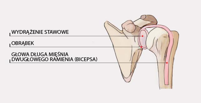Uszkodzenie obrąbka panewkowego